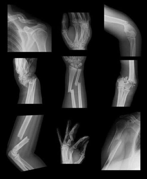 bone fracture