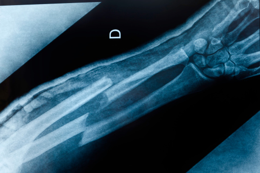 An x-ray image of an broken arm